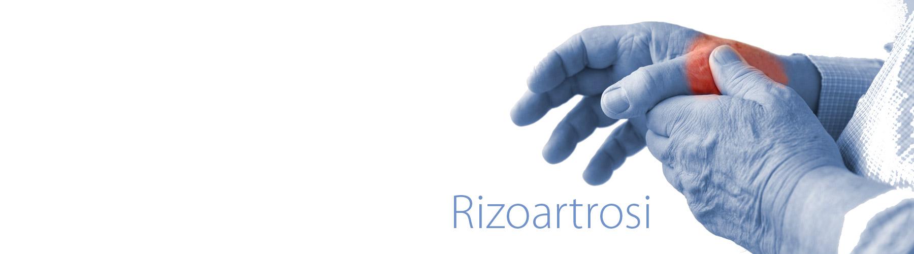La rizoartrosi è una forma di artrosi che colpisce l'articolazione alla base del primo dito, il pollice. Il dottor Giuseppe Checcucci, Chirurgo chirurgo ortopedico dell'arto superiore, è specializzato nel trattamento della rizoartrosi e riceve a Firenze, Arezzo ed Empoli. I tempi di attesa sono estremamente rapidi.La rizoartrosi è una forma di artrosi che colpisce l'articolazione alla base del primo dito, il pollice. Il dottor Giuseppe Checcucci, Chirurgo chirurgo ortopedico dell'arto superiore, è specializzato nel trattamento della rizoartrosi e riceve a Firenze, Figline Valdarno, Arezzo ed Empoli. Gli interventi chirurgici sono effettuati sia in forma privata che in convenzione con la ASL. I tempi di attesa sono estremamente rapidi.