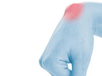 La cisti artrogena è caratterizzata da grumi o protuberanze sul polso. Il dottor Giuseppe Checcucci, Specialista in Chirurgia della Mano, è massimo esperto nel trattamento ambulatoriale e chirurgico della cisti artrogena.