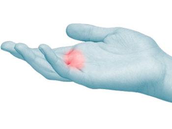 Il dito a scatto è una fenomeno doloroso ricorrente e da non trascurare.