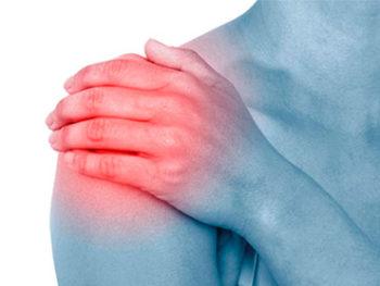 La lussazione della spalla è una fuoriuscita completa della spalla dalla sua sede naturale a seguito di sintomi di instabilità.